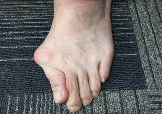 手術をしない外反母趾治療